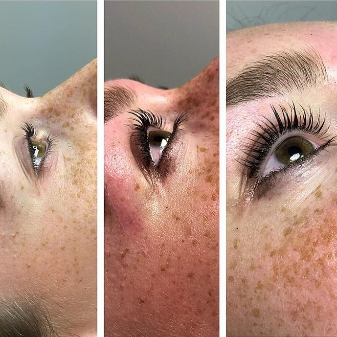 Jennifer Lash Lift